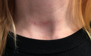 Thyroid cancer surgery scar after nearly two years